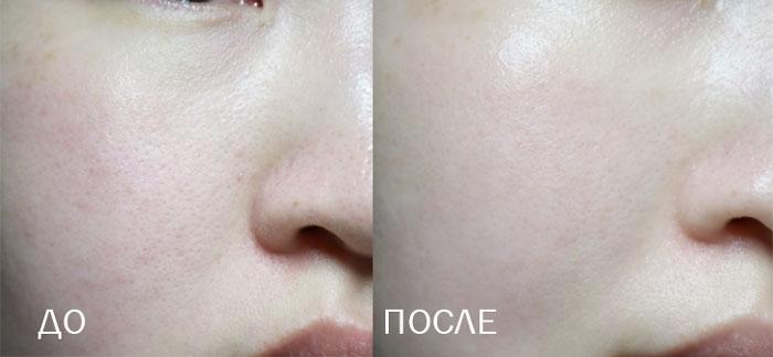 Elizavecca Sesalo Salicyl Cream Крем салициловый с эффектом пилинга фото 4 | Sweetness