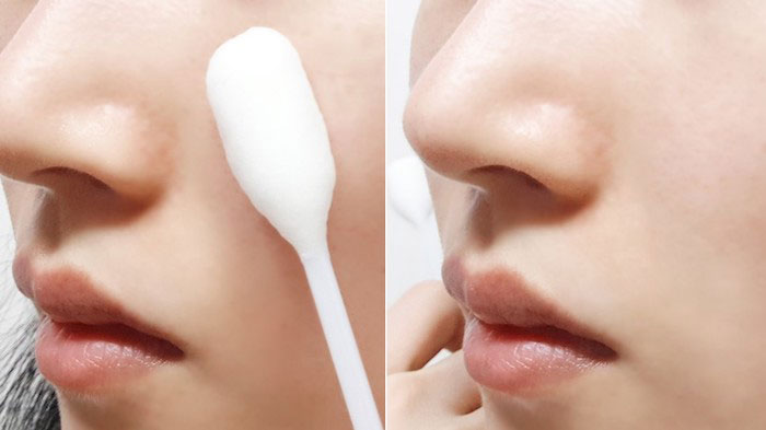 Кислотный пилинг с 8% AHA и BHA A'PIEU Aqua Peeling Cotton Swab Intensive фото 5 | Sweetness