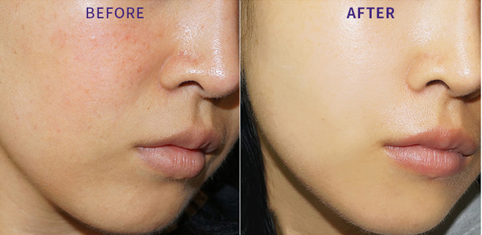 Holika Holika Skin and Good Cera Ultra Emulsion Восстанавливающая Эмульсия для лица с керамидами фото 5 | Sweetness
