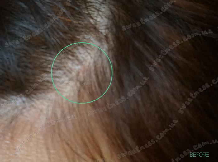 La'dor Scalp Scaling Spa Hair Ampoule Пилинг для кожи головы фото 7 | Sweetness