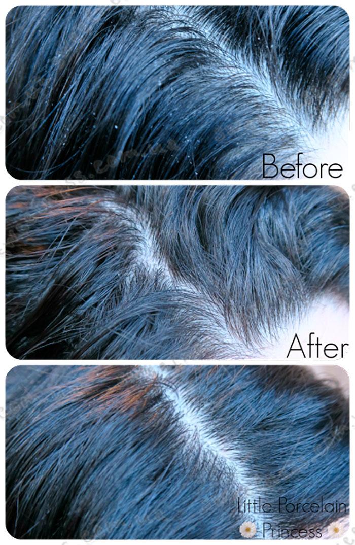 La'dor Scalp Scaling Spa Hair Ampoule Пилинг для кожи головы фото 9 | Sweetness
