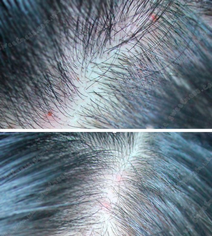 La'dor Tea Tree Scalp Clinic Hair Pack Маска для кожи головы с чайным деревом фото 3 | Sweetness