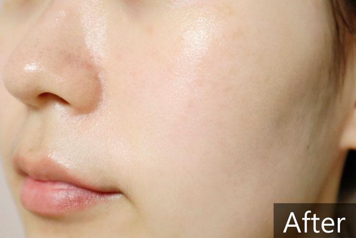 Medi-peel Gold Age Tox Cream Антивозрастной капсульный крем с экстрактом золотого шелкопряда фото 8 / Sweetness