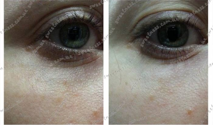 Улиточный крем под глаза Mizon Snail Repair Eye Cream фото 6 | Sweetness