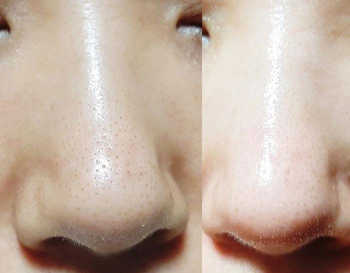 Маска 3-х шаговая для очищения пор носа от черных точек Nightingale Tako Pack Nose фото 9 | Sweetness