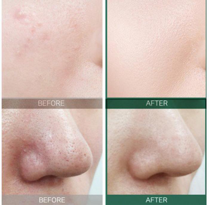Набор мини-средств для проблемной кожи на 30 дней лечения SOME BY MI AHA.BHA.PHA 30 Days Miracle Starter Kit фото 3 | Корейская косметика Sweetness