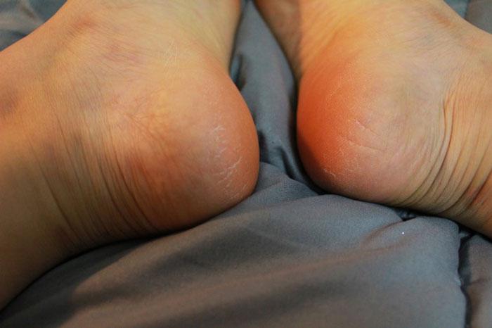 The Saem Dear My Foot Power Peeling Пилинг носочки для ног, фото 5 | sweetness.com.ua